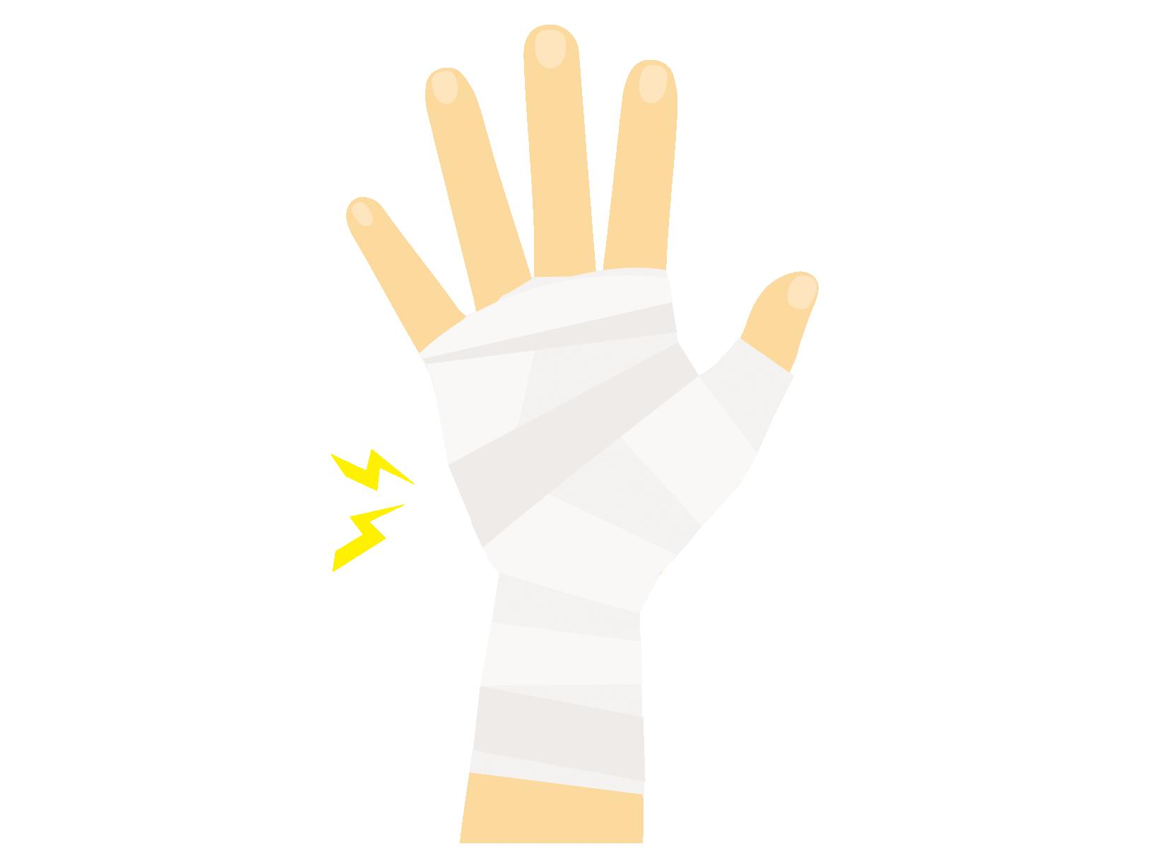 腱鞘炎のテーピングのイラスト