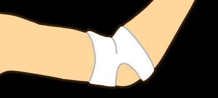 肘の痛みのイラスト