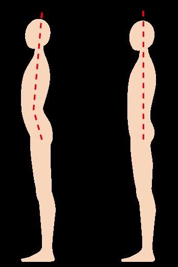 反り腰のイラスト