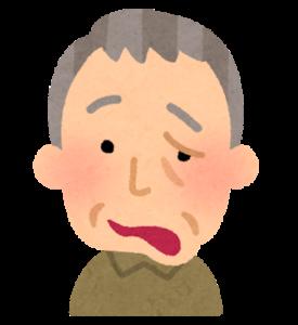 顔面神経麻痺のイラスト